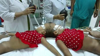Koponyarekonstrukciós műtétre utaznak magyar orvosok Bangladesbe