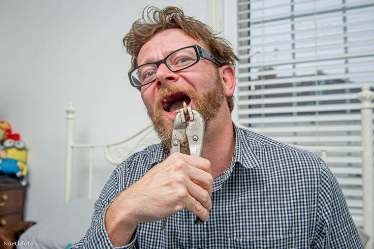 Szóval ezeken a fotókon egy 42 éves brit apuka mutatja meg, hogyan húzta ki két saját metszőfogát egy fogóval, pontosabban egy pillanatszorító néven is ismert eszközzel