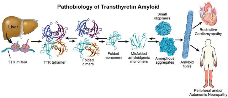 TTR fehérje disszociáció mechanizmusa