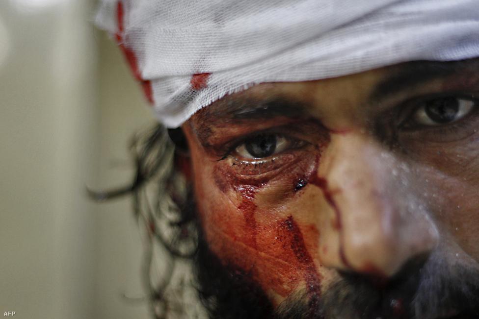 Véres arcú felkelő Aleppóban.