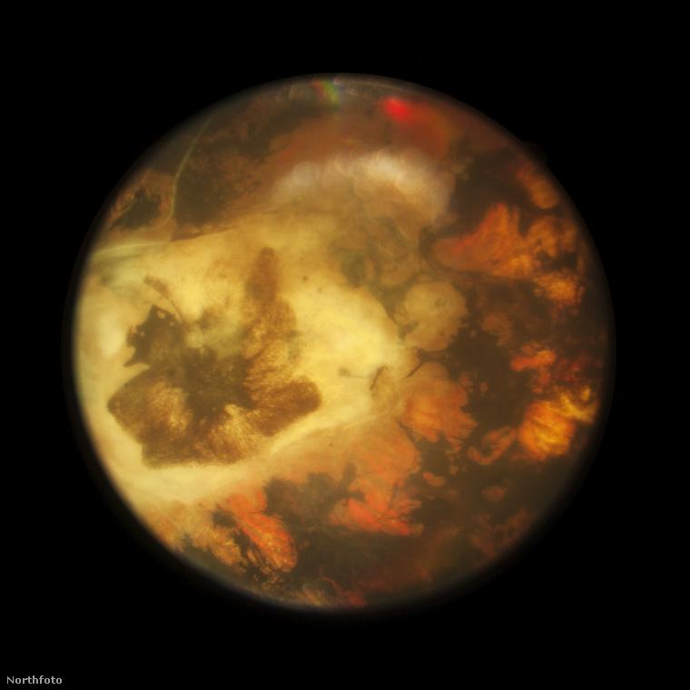 Ezt a fotót egy olyan különleges kameralencsével készítették, amit az orvostudományban, elsősorban a szemészetben használnak