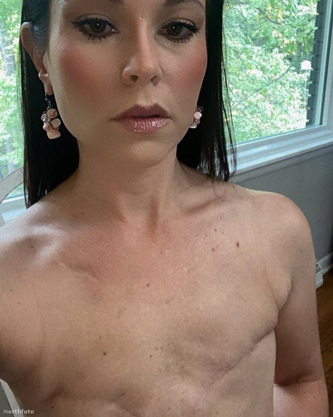 Lee a mammográfiai központ felhívására vállalt fotózást.