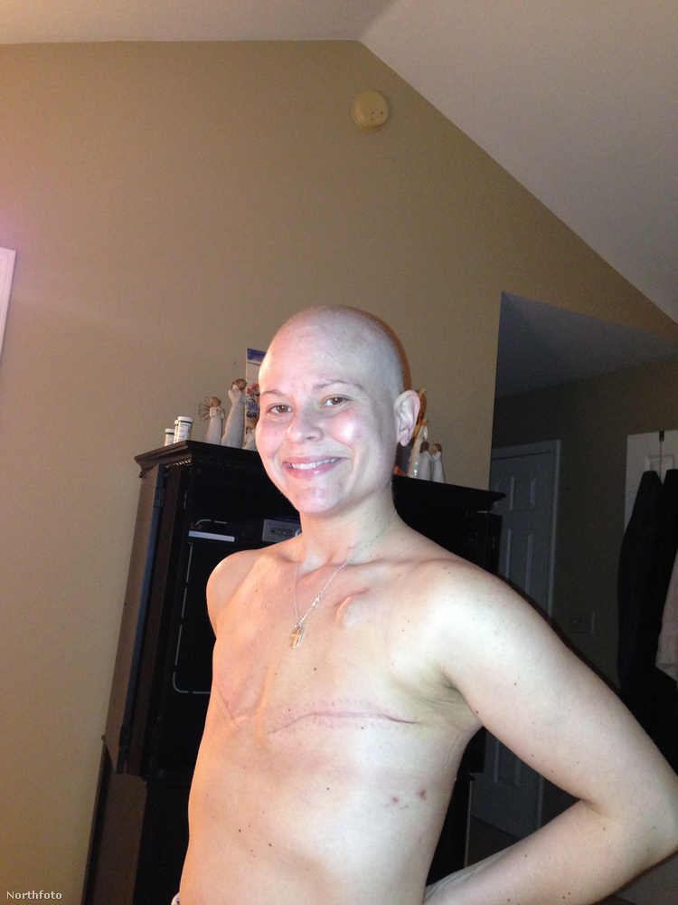 A chemoterápia hatására a haját is elvesztette.