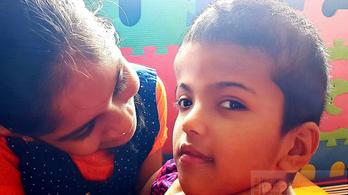 Újabb műtétet hajtott végre a magyar orvoscsoport a bangladesi sziámi ikrekért