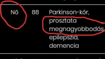 Nem nő, hanem férfi volt a koronavírus magyar áldozata, akinek prosztata-megnagyobbodása volt