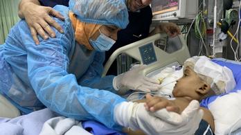 Továbbra is jó az állapota a magyar orvosok által szétválasztott sziámi ikerlánynak