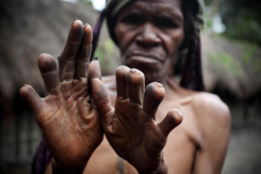 Az Indonéziában élő, 250 ezer fős dani törzsben, ha meghal valaki a családban, arra kötelezik a nőket, hogy vágják le egyik ujjpercüket a történteket követően. Úgy vélik, a rokon halálával járó lelki fájdalomnak fizikai fájdalommá kell alakulnia, hogy igazán meg tudják gyászolni. A tradíció csak a nőkre és a lányokra vonatkozik.