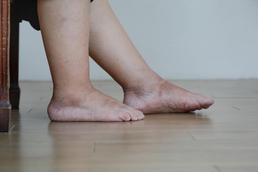 A nem megfelelően működő vesék nem képesek eltávolítani a felesleges folyadékot a szervezetből, így ödéma alakulhat ki. A lábfejek, a bokák és a lábszárak is duzzadtak, vizenyősek lehetnek. Ritkábban, de a kezeken is előfordulhat a tünet.