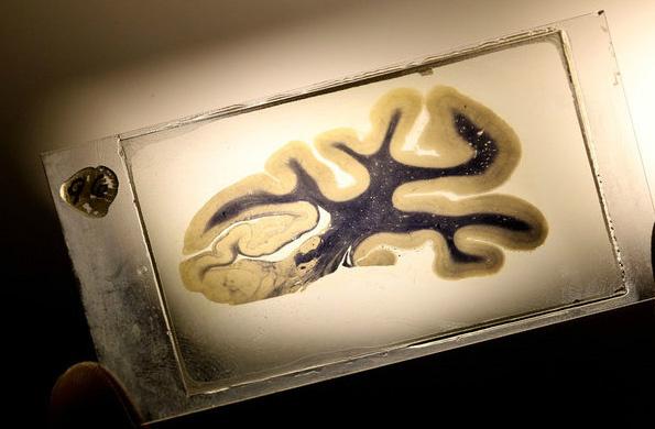 einstein brain slice