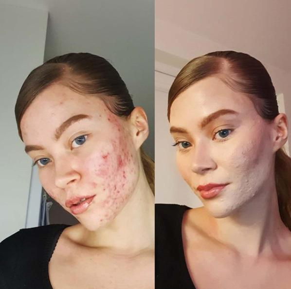 Yoella ma már sminkben és természetes arccal is büszkén mutatja meg magát. Sőt, bár korábban álmában sem gondolta volna, de előfordul, hogy randevúzni is festetlen bőrrel megy.
