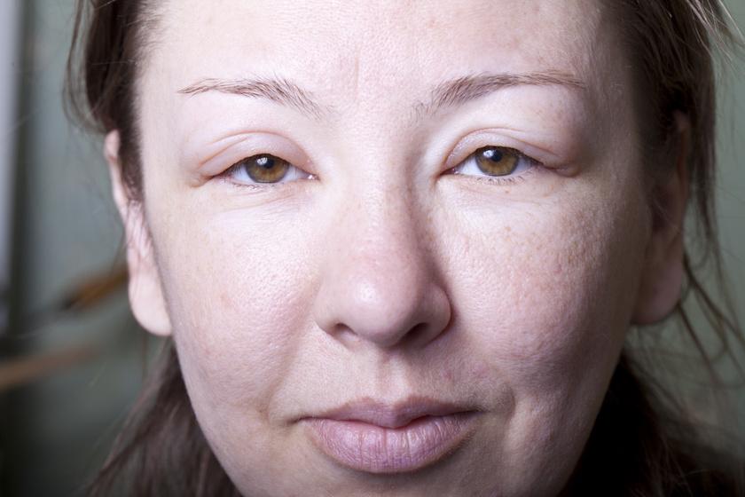 Az angioödéma 6 leggyakoribb oka: az arcon jelennek meg a tünetek