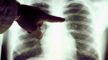Félmillió krónikus tüdőbeteg is élhet Magyarországon