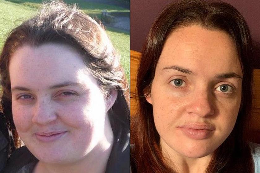 A lánybúcsú volt az utolsó csepp a pohárban: 127 kilóról indult, 40 kilót fogyott Hannah