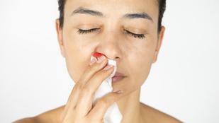 Miért vérzik gyakrabban az orrunk télen?