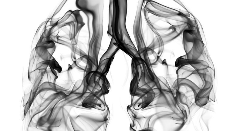 Ijesztő adatok jöttek a tüdőrákról, vezeti a halálozási statisztikákat