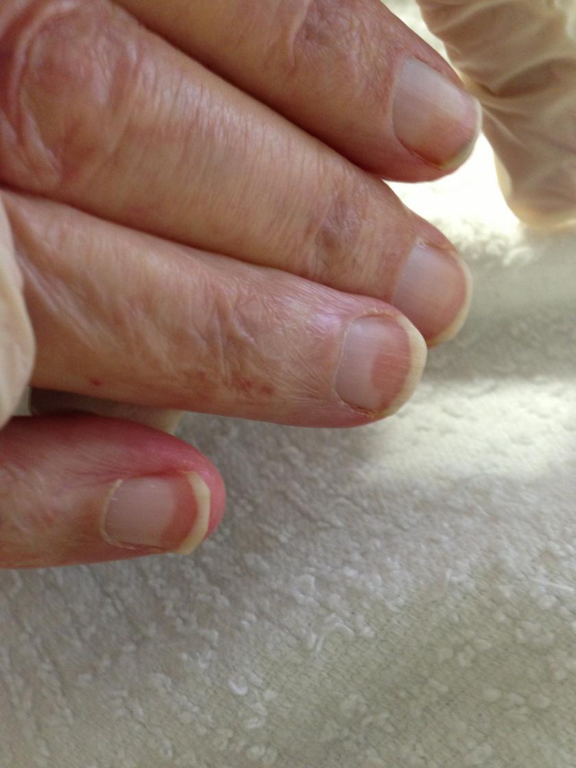A Terry-féle köröm néven ismert elváltozás esetén a köröm majdnem teljesen fehér, a jellegzetes kis félhold (lunula) hiányzik az aljáról. A köröm tetején barnás, rózsaszínes sáv lehet, előfordulása a kézen gyakoribb. Általában a májbetegségekkel hozzák összefüggésbe, a májzsugorral élő betegek nagy részénél jelentkezik, de krónikus veseelégtelenséget, perifériás érbetegséget és 2-es típusú cukorbetegséget is kísérhet. Idősebb korban betegség nélkül is kialakulhat.