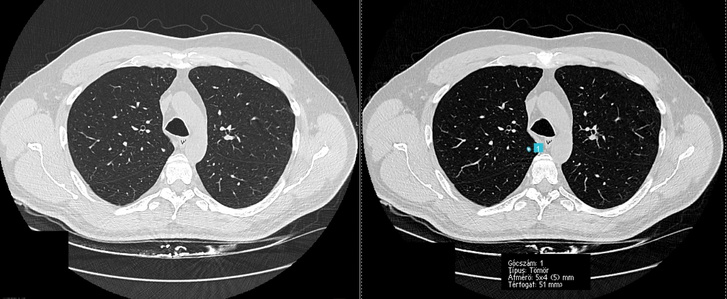 Egy low-dose CT-felvétel, amelyen az MI felismeri a dagantos elváltozásokat