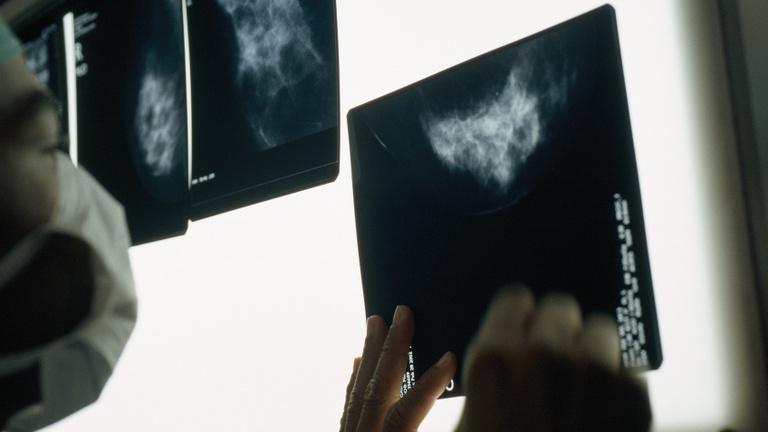 A későn diagnosztizált rákbetegek lehetnek a járvány másodlagos áldozatai