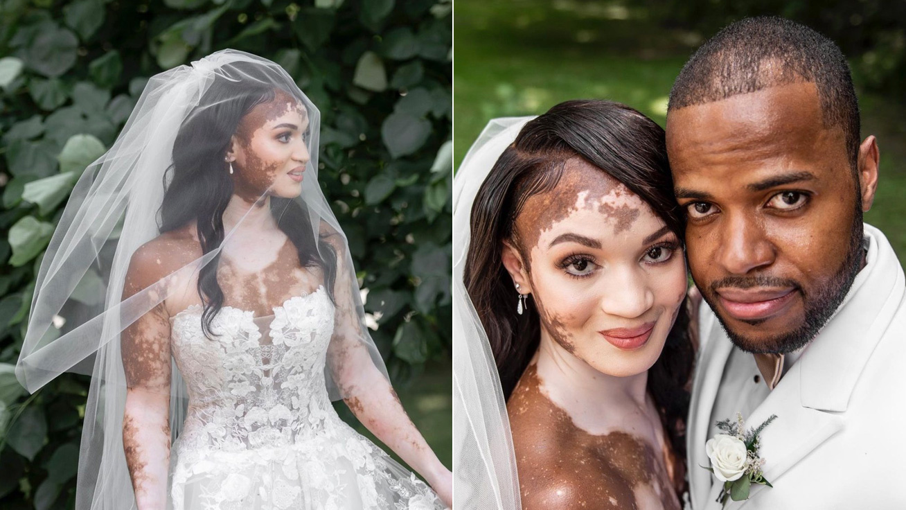vitiligo eskuvon cover