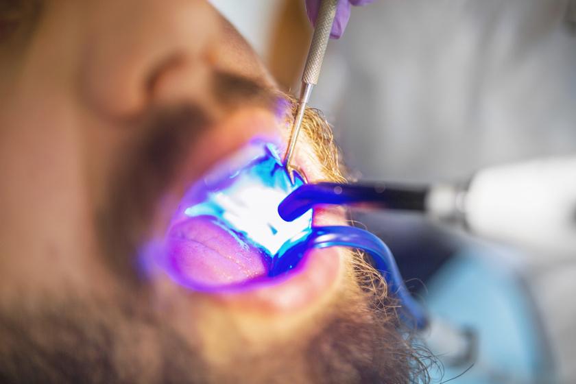 szájüregi rák zárójelben