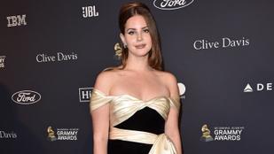 Lana Del Rey eltörte a karját