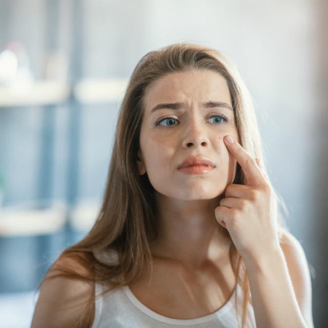 6 ok, ami növeli a bőrrák kialakulását: a basaliomát nehéz észrevenni