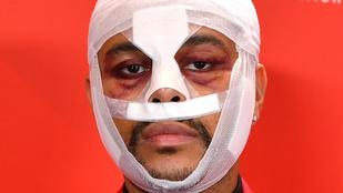 The Weeknd szétbotoxoltotta-plasztikáztatta magát egy klip erejéig