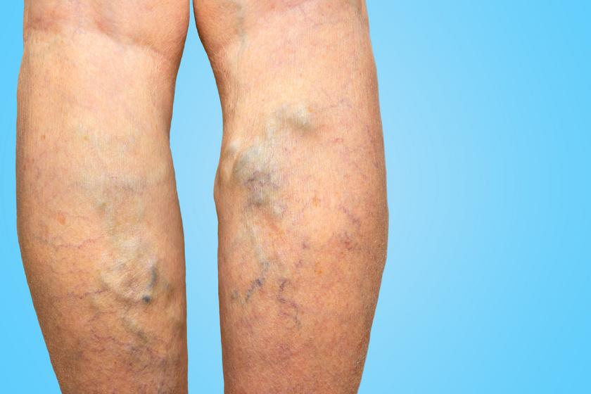 A lábszár viszketése és hámló bőrfelület is jelezheti az elváltozást: a visszérbetegség figyelmeztető tünetei
