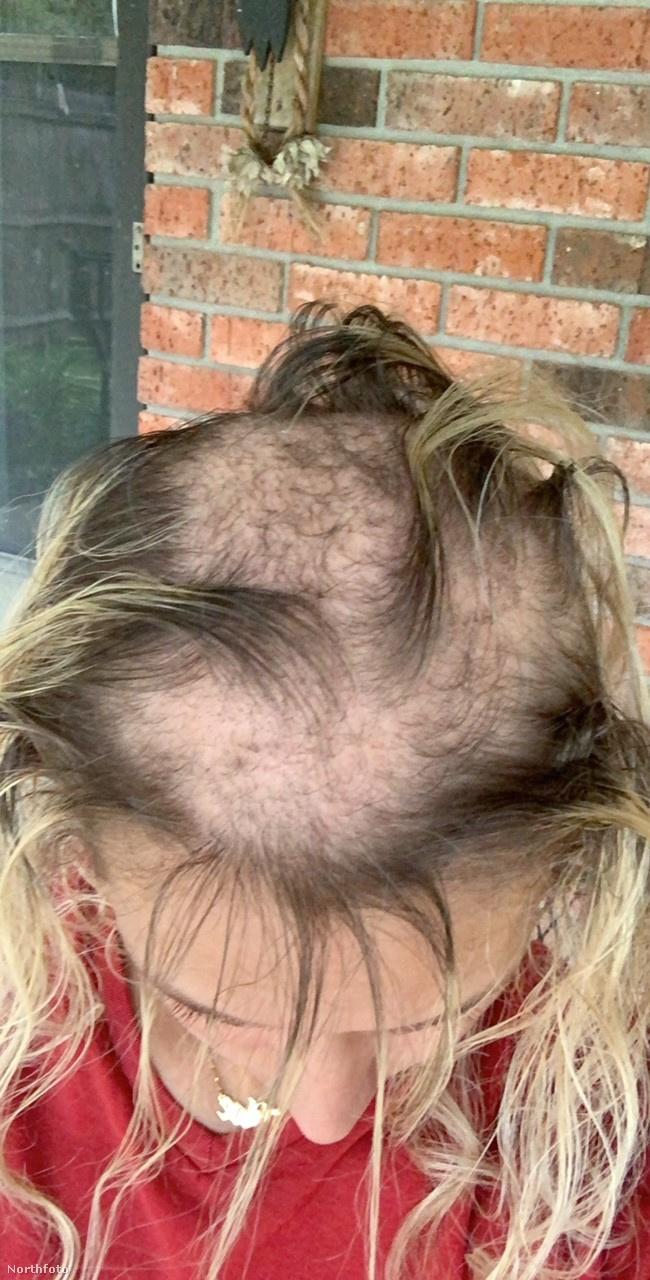 Kopaszodása az iskolában bátortalanná és visszahúzódóvá tette, minden lehetséges módszert kipróbált, hogy többnek láttassa a haját, mint amennyi valójában volt neki
