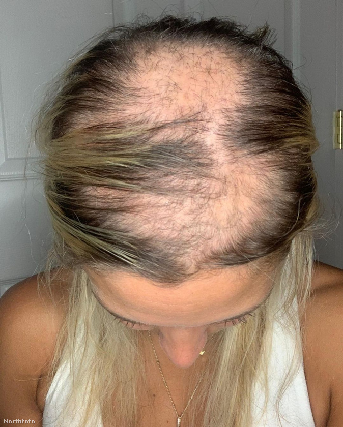 Chloe 730 fontot vagyis csaknem 300 ezer forintot költött különböző hajápoló szerekre, hogy megállítsa kopaszodását