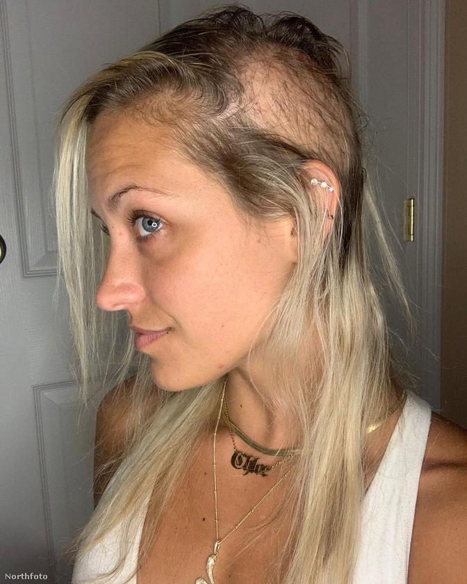 Az állapota miatti idegeskedés csak gyorsította a kopaszodását, tavaly májusban pedig egy reggel arra ébredt, hogy egy óriási területen kihullott a haja