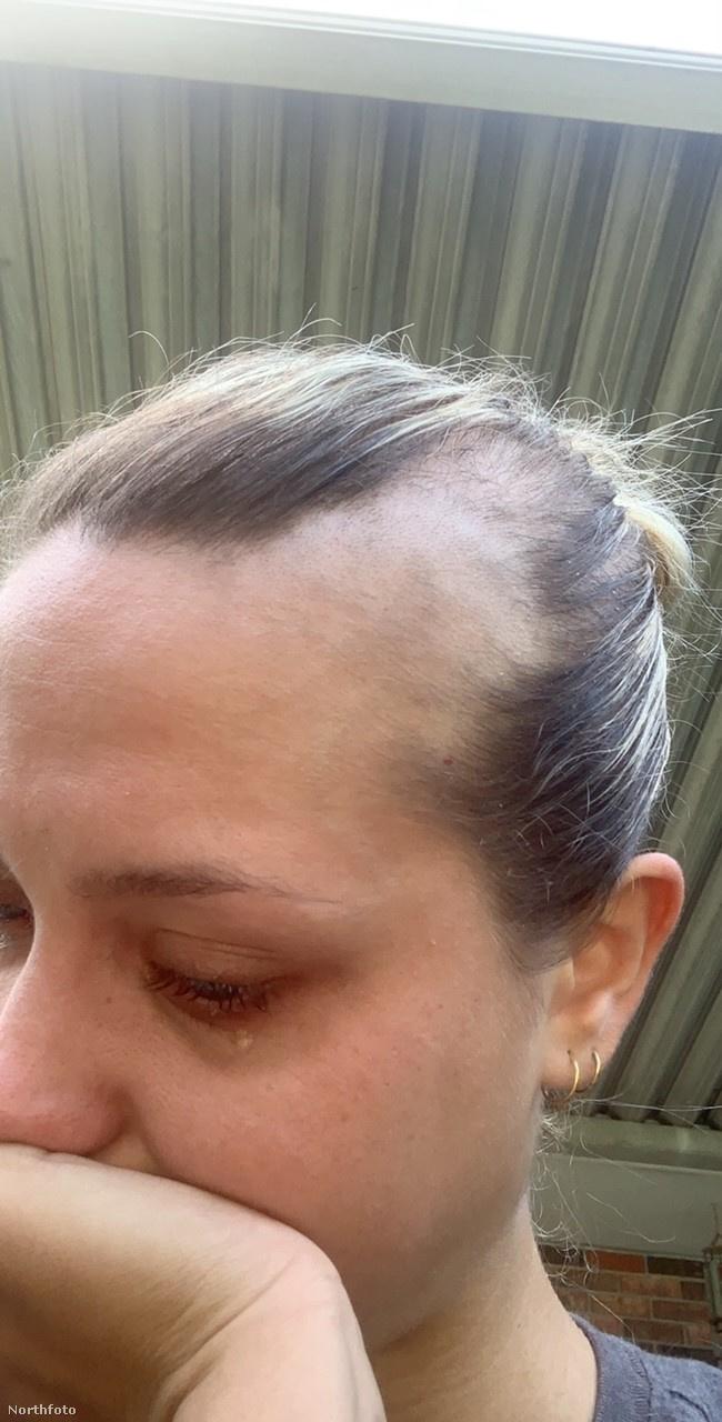 Chloe nemcsak különböző kozmetikai termékekkel próbálta megállítani a hajhullását, vitaminokat is szedett, sőt, fájdalmas szteroidinjekciókat is kapott, átütő sikert azonban egyikkel sem sikerült elérnie