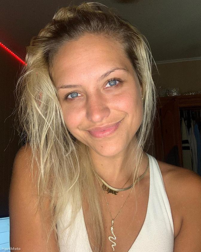 A 26 éves Chloe Thomas tinédzserkorában vette észre, hogy foltokban hullik a haja