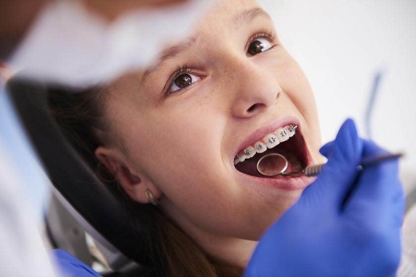 Mikor ingyenes a fogszabályozás? Nem árt, ha szülőként tisztában vagy a lehetőségekkel