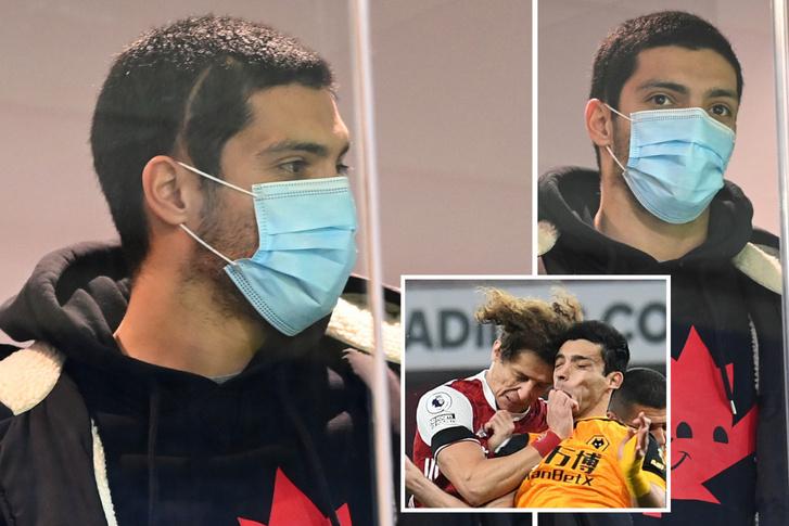 Raúl Jiménez fejének oldalán látható a műtéti heg a koponyasérülést követően