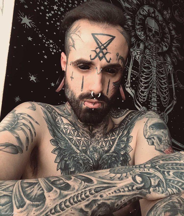 Ezzel még nem ért véget a férfi fejét érintő műtétek sora: homlokába két kis szilikonimplantátumot tetetett, szintén azért, hogy úgy nézzen ki, mint az ördög