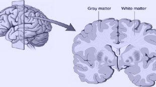A középkorúak rendszeres sportolása befolyással bír később az agyunk szerkezetére?