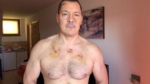 Könyves Tamásnál bőrrákot diagnosztizáltak, azt gyanítja, elsősorban a túl sok napozás-szolizás miatt