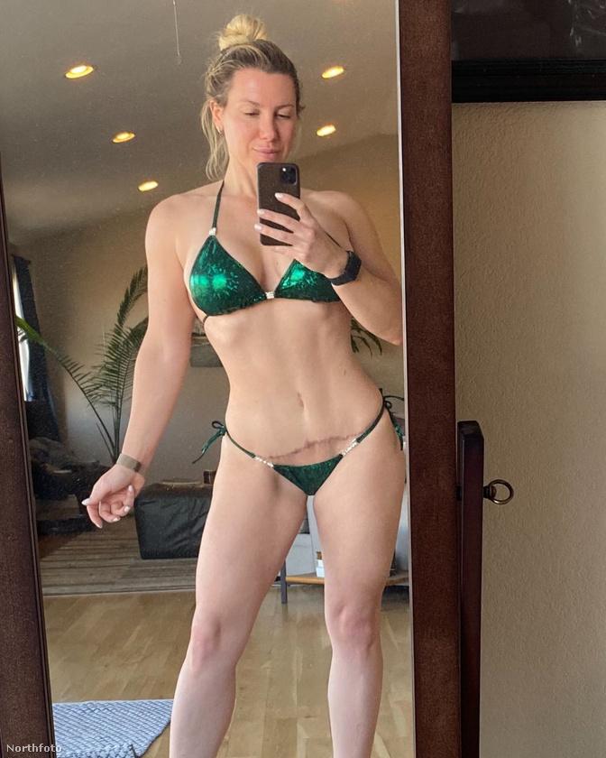Hát így néz ki Sarah Doehler most, 59 kilósan a sztori és a lapozgató végén
