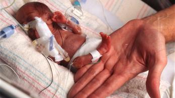 Halva született, elkapta a koronavírust, mégis életben maradt a brit csecsemő
