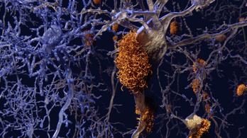 Visszahozhatók az Alzheimer-kór miatt elveszített kognitív képességek