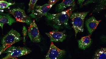 Nanorészecske-injekcióval gyógyítható a bőrrák