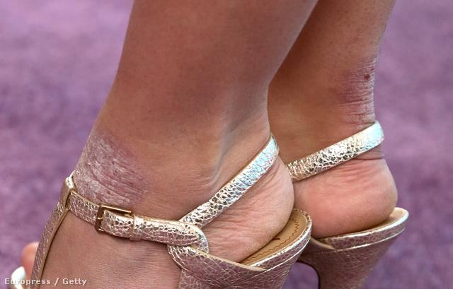 Az énekesnő lábán két csúnya folt is van.