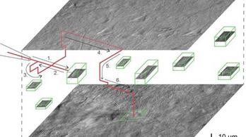 Megtalálja az agysejtet a mesterséges intelligenciával vezérelt szegedi mikroszkóp