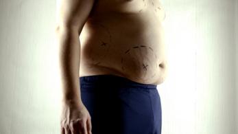 Új étvágycsökkentő gyógyszer segíthet az elhízás legyőzésében