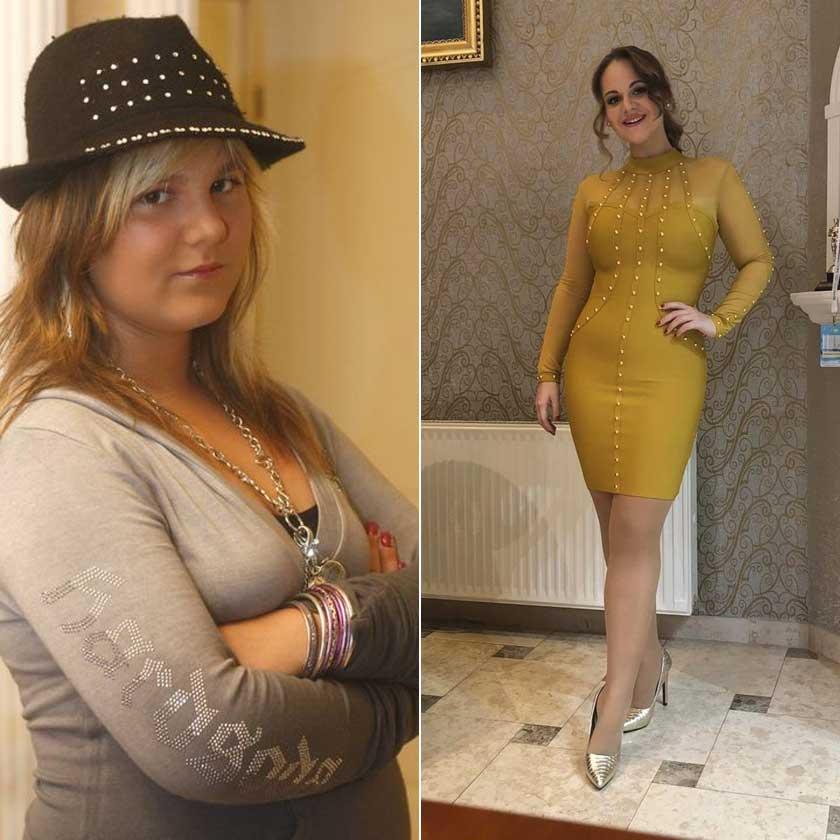 A túlsúllyal küzdő lány már a múlté, Fásy Zsüliett a 23. születésnapját már nádszálkarcsún ünnepelte a sárga ruhában.