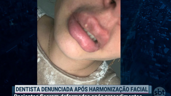 Szörnyeket csinált pácienseiből a fogorvos