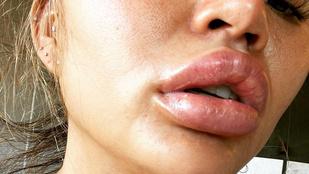 Chrissy Teigen beleharapott egy narancsba, az ajkai brutálisan megdagadtak tőle