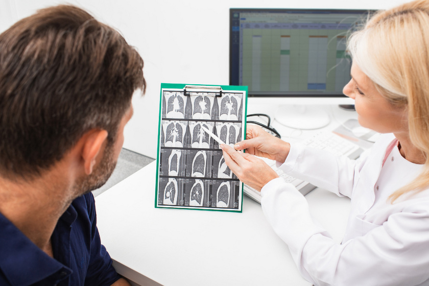 Korai stádiumban kimutatható a tüdőrák ezzel a vizsgálattal: hatalmas előrelépés a diagnosztikában