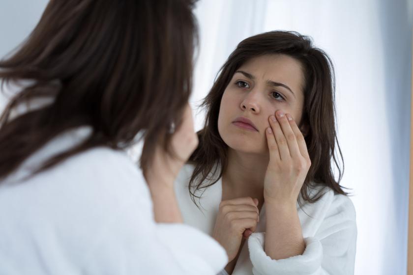 A táskás, puffadt szem 5 oka: a pajzsmirigy és a PMS is állhat a háttérben